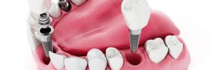 tratamientos implantes dentales clpadros mejor clinica dental barcelona